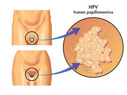 ВПЧ и беременность